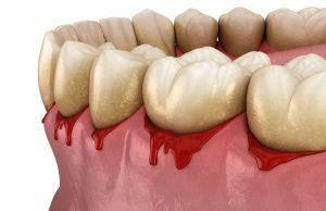 entzündetes Zahnfleisch durch Paradontitis führt zu Blutungen