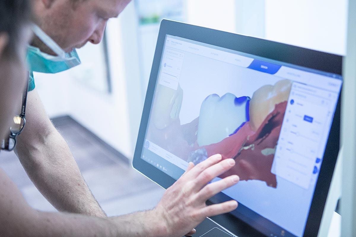Zahnarzt analysiert den CEREC Scan für Restauration