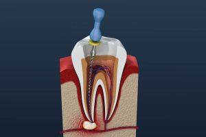 Entfernen des infizierten Gewebes bei Wurzelentzünung - Zahnarzt München Au Haidhausen