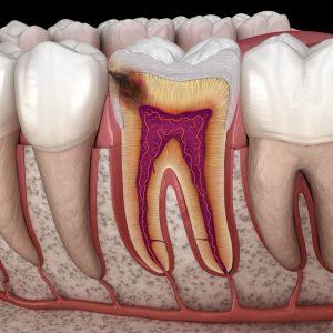Karies im Zahnzwischenraum