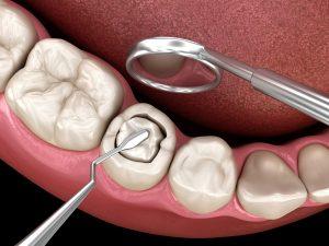 Zahnfüllung rausgefallen was tun