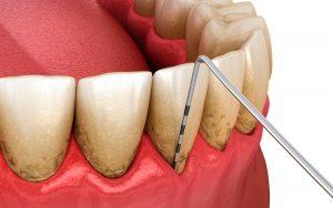 Taschenmessung vor einer Parodontitistherapie bei Zahnarzt in München