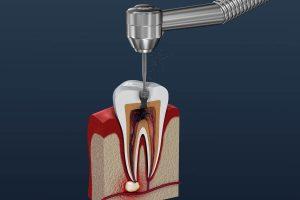 Darstellung einer Trepanation - zahnarztpraxis haidhausen münchen