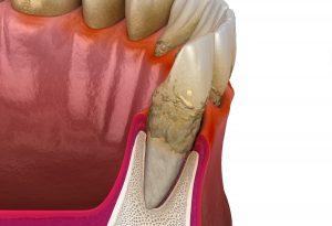 Veranschaulichung von Konkrementen unter dem Zahnfleisch