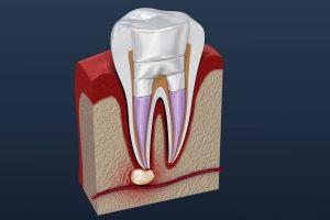 Dichte Wurzelfüllung nach Wurzelbehandlung in Zahnarztpraxis Haidhausen München
