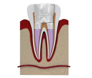 Ausgeheilte Entzündung nach Wurzelbehandlung in Zahnarztpraxis München Haidhausen
